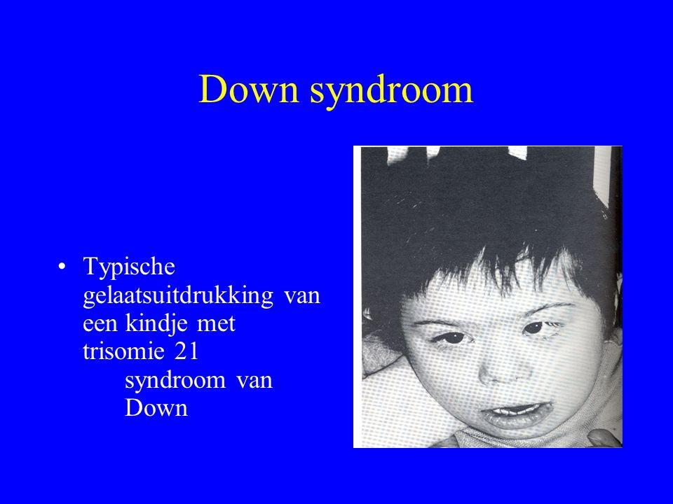Down syndroom Typische gelaatsuitdrukking van een kindje met trisomie 21 syndroom van Down