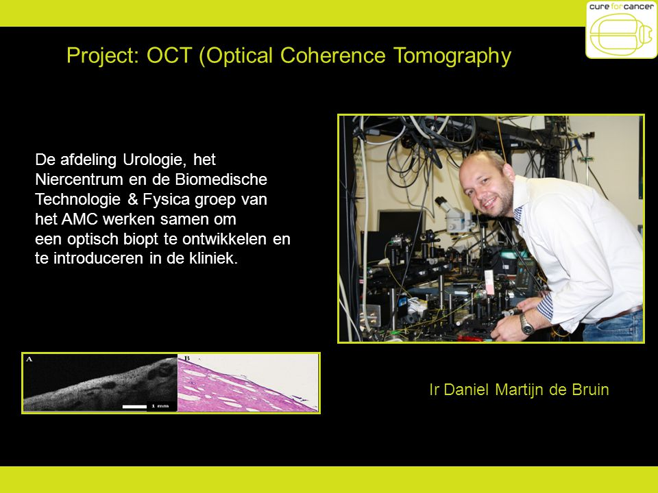 Project: OCT (Optical Coherence Tomography