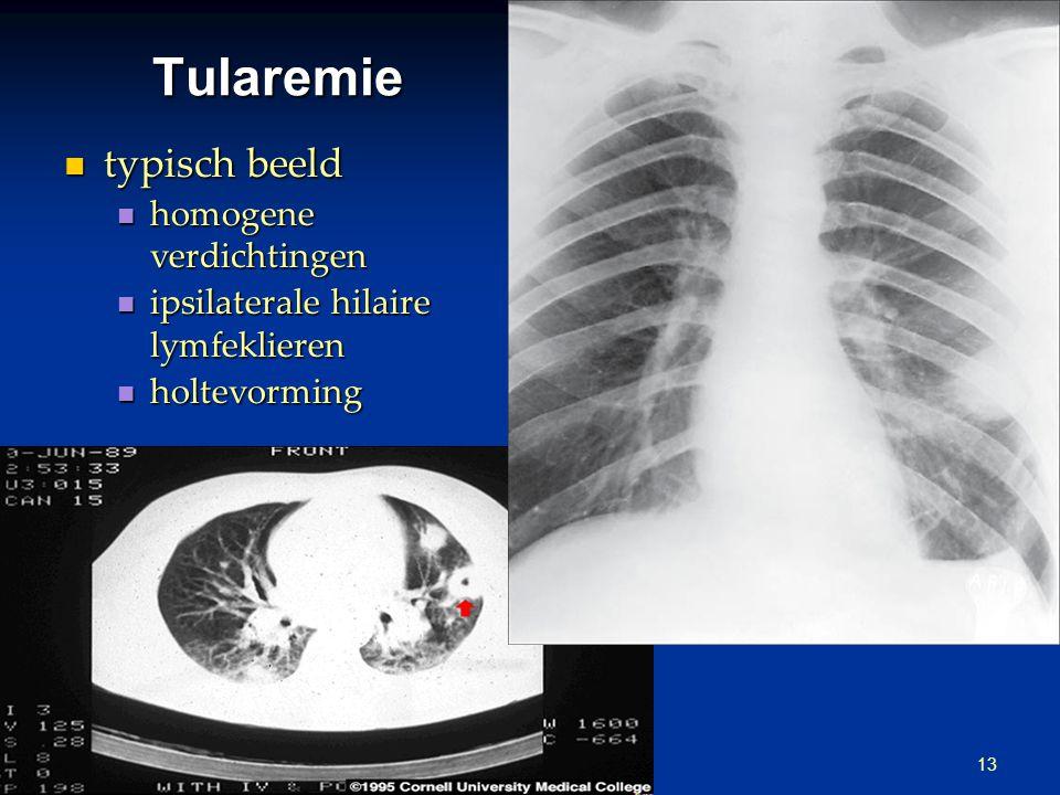 Tularemie typisch beeld homogene verdichtingen
