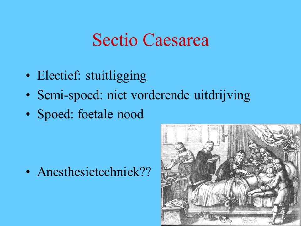 Sectio Caesarea Electief: stuitligging