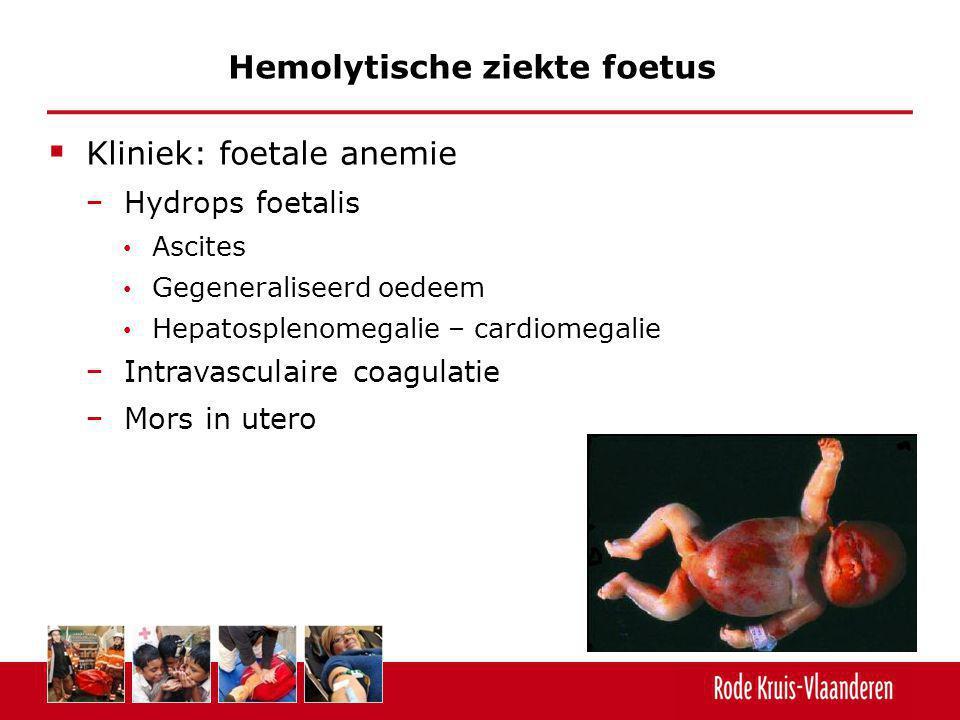 Hemolytische ziekte foetus