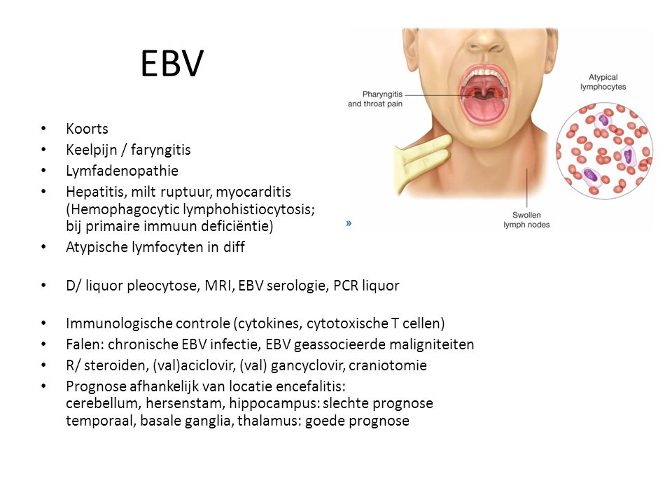 EBV Koorts Keelpijn / faryngitis Lymfadenopathie