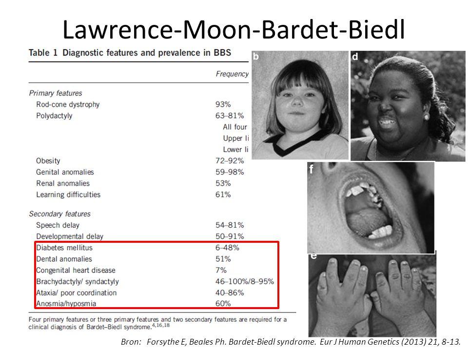 Lawrence-Moon-Bardet-Biedl