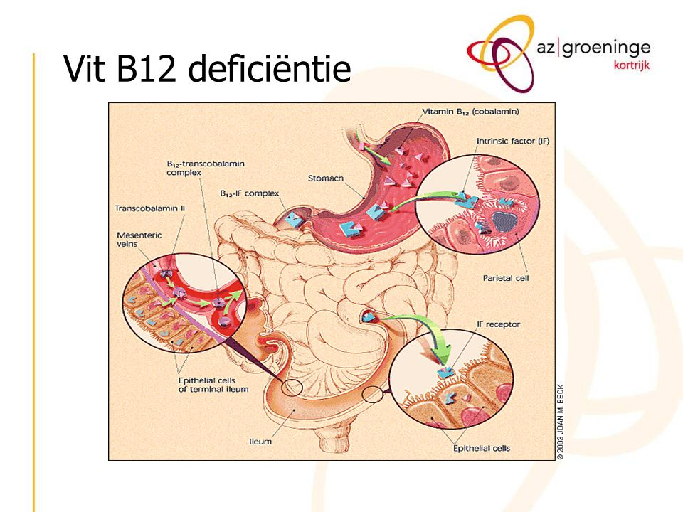 Vit B12 deficiëntie