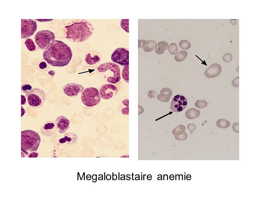 Megaloblastaire anemie