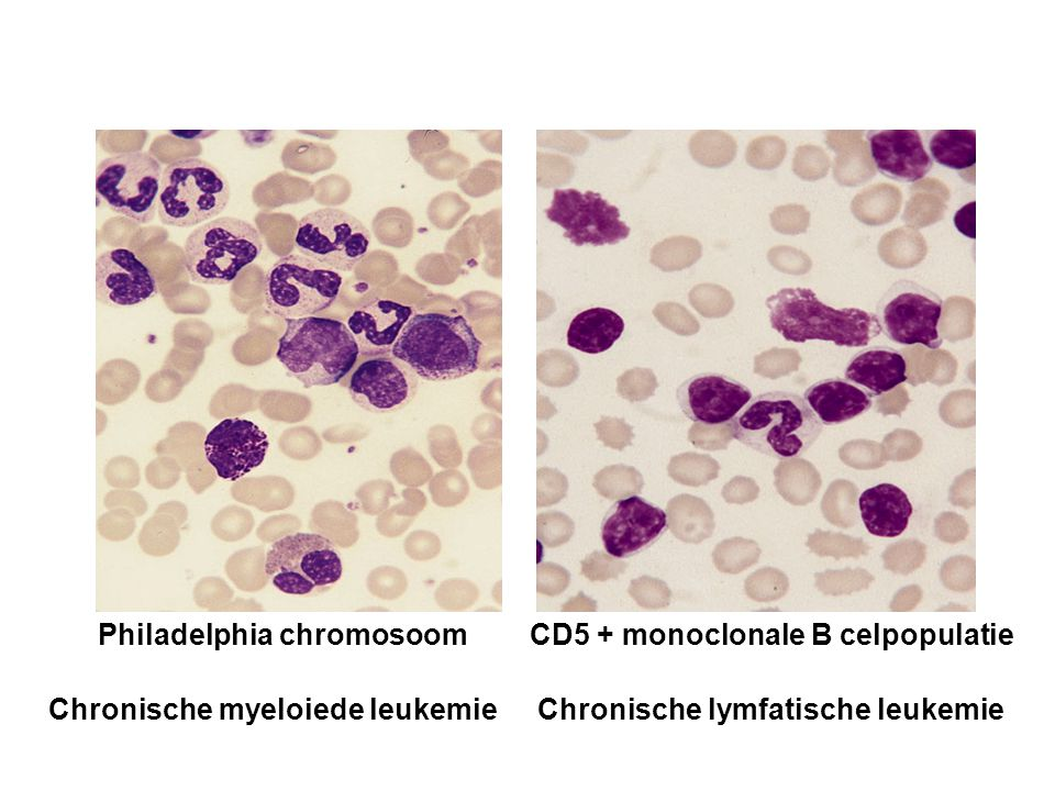 Philadelphia chromosoom