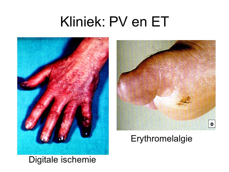 Kliniek: PV en ET Erythromelalgie Digitale ischemie
