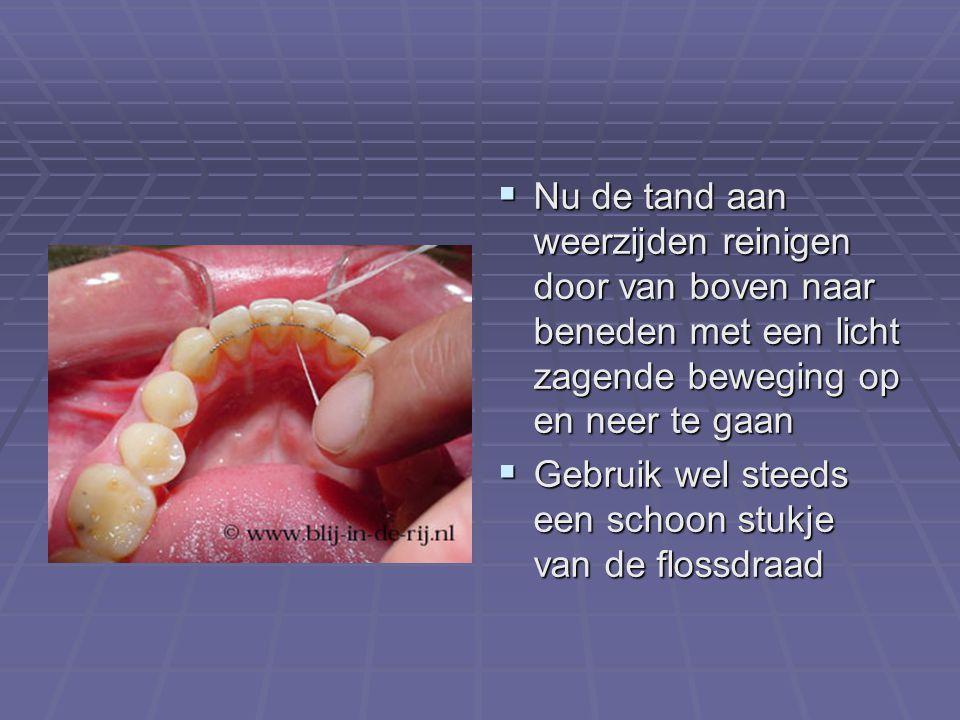 Nu de tand aan weerzijden reinigen door van boven naar beneden met een licht zagende beweging op en neer te gaan