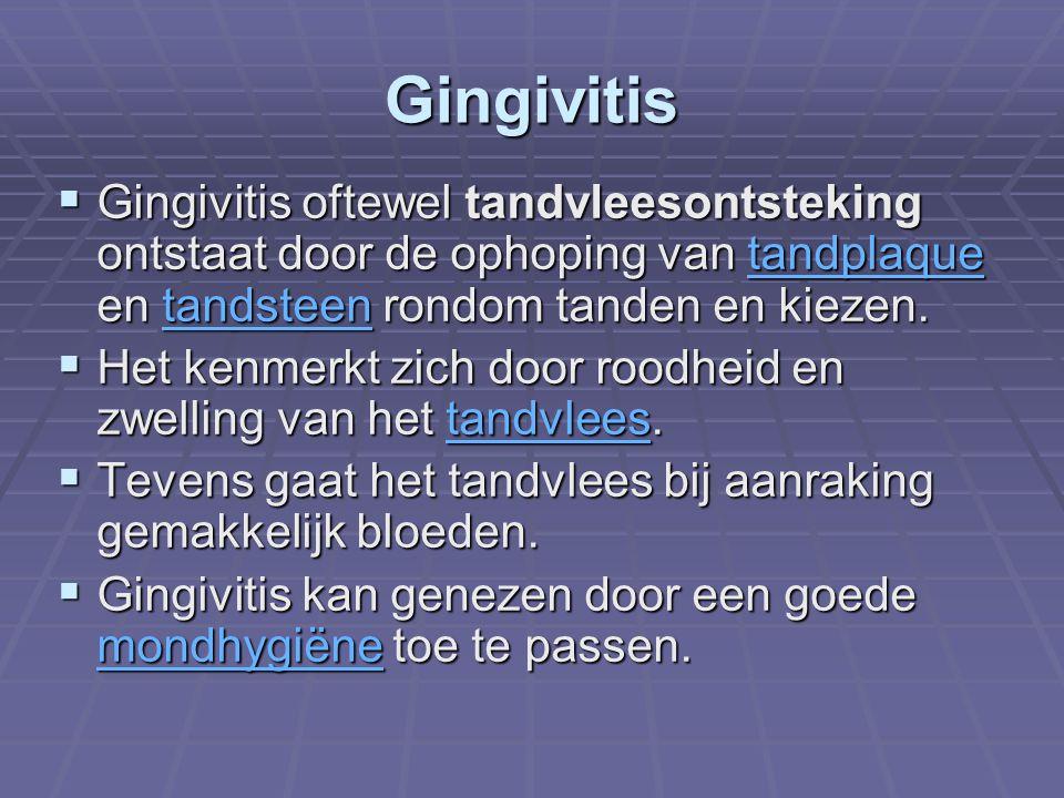 Gingivitis Gingivitis oftewel tandvleesontsteking ontstaat door de ophoping van tandplaque en tandsteen rondom tanden en kiezen.
