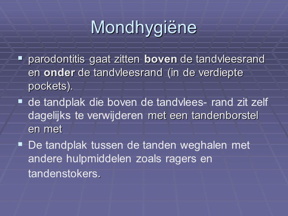 Mondhygiëne parodontitis gaat zitten boven de tandvleesrand en onder de tandvleesrand (in de verdiepte pockets).