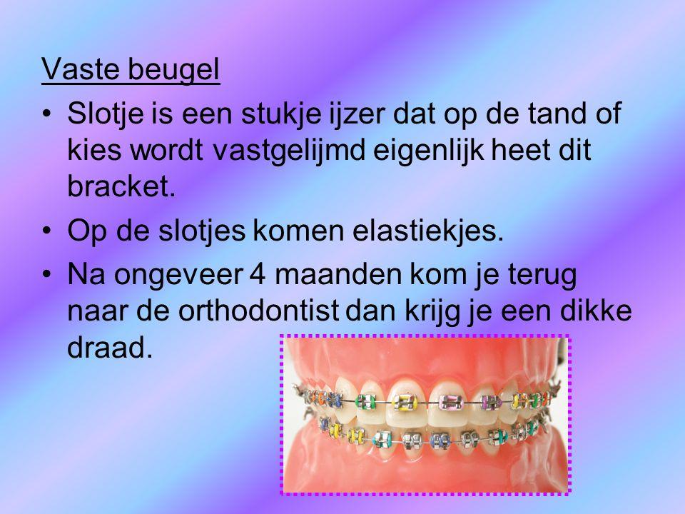 Vaste beugel Slotje is een stukje ijzer dat op de tand of kies wordt vastgelijmd eigenlijk heet dit bracket.
