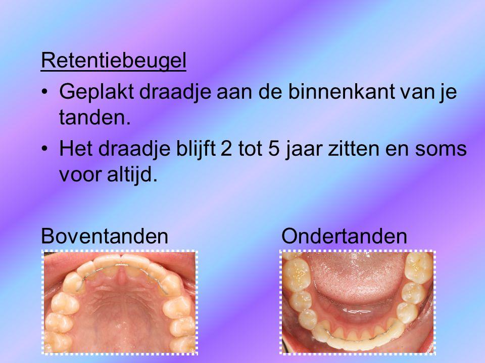 Retentiebeugel Geplakt draadje aan de binnenkant van je tanden. Het draadje blijft 2 tot 5 jaar zitten en soms voor altijd.