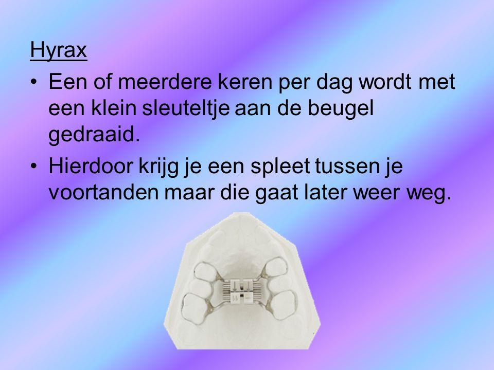 Hyrax Een of meerdere keren per dag wordt met een klein sleuteltje aan de beugel gedraaid.