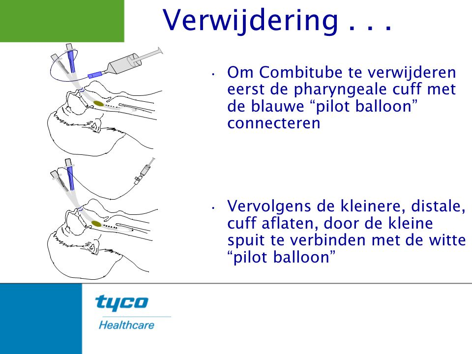 Verwijdering . . . 1. Om Combitube te verwijderen eerst de pharyngeale cuff met de blauwe pilot balloon connecteren.
