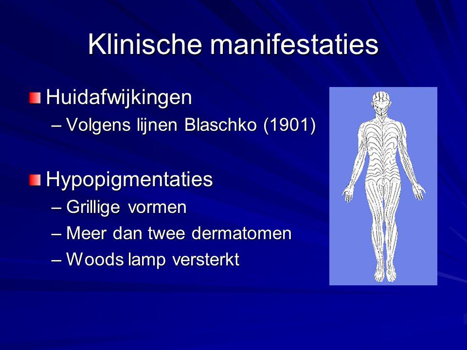 Klinische manifestaties