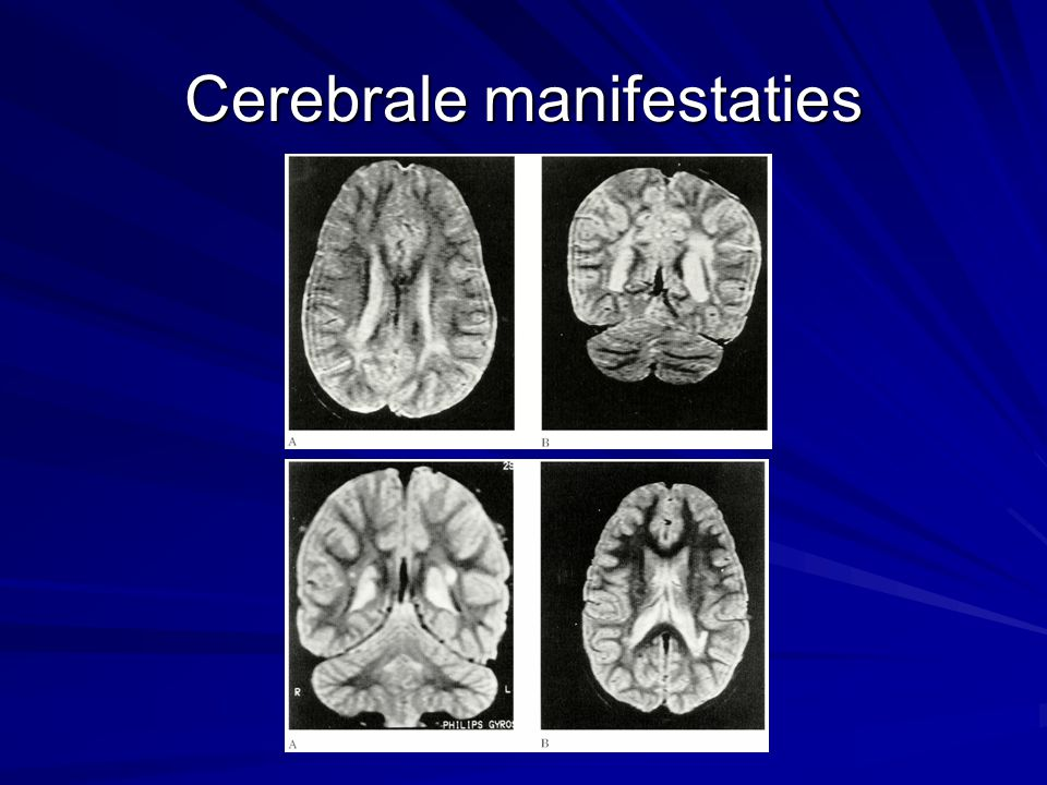 Cerebrale manifestaties