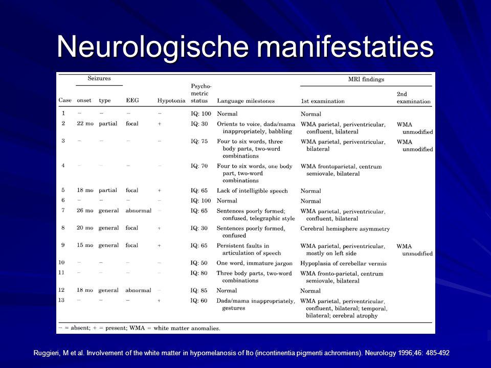 Neurologische manifestaties