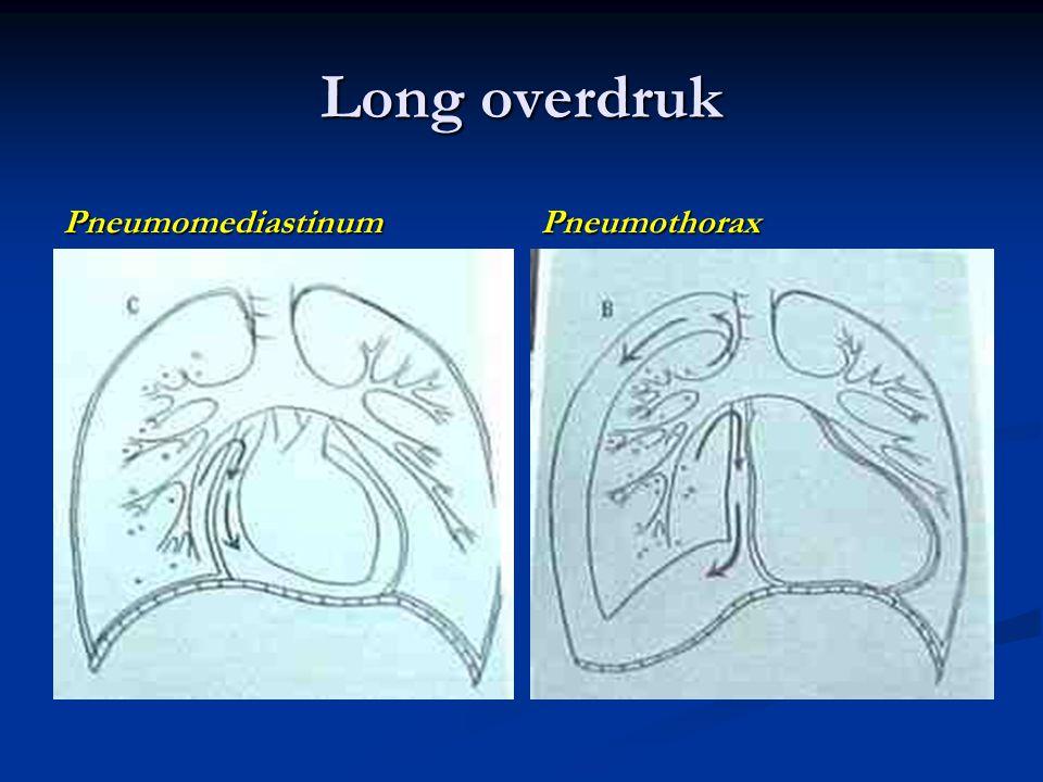 Long overdruk Pneumomediastinum Pneumothorax