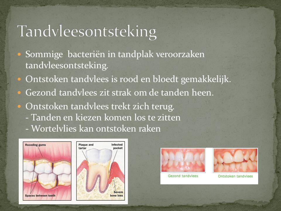 Tandvleesontsteking Sommige bacteriën in tandplak veroorzaken tandvleesontsteking. Ontstoken tandvlees is rood en bloedt gemakkelijk.