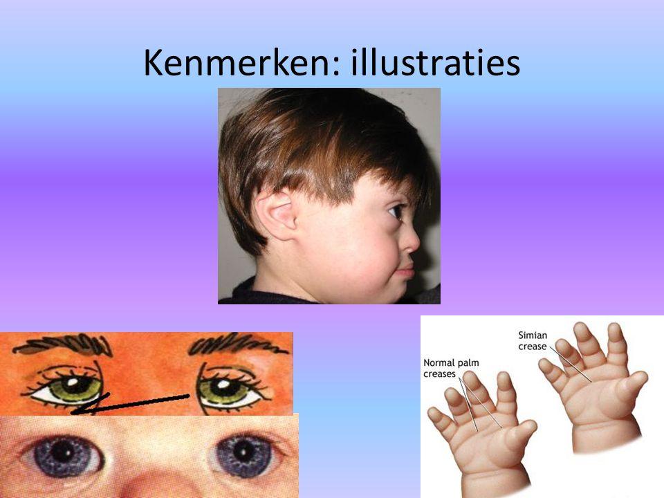 Kenmerken: illustraties