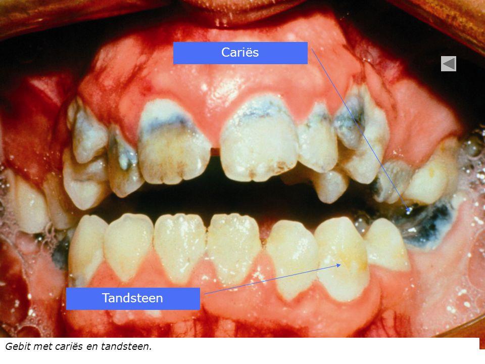 Cariës Tandsteen Gebit met cariës en tandsteen.