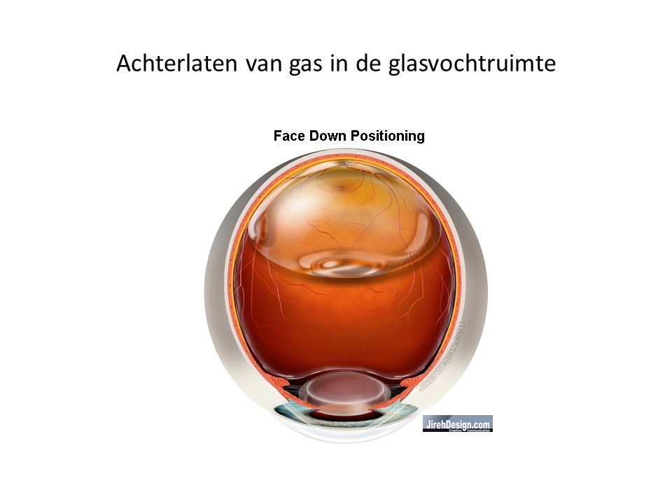 Achterlaten van gas in de glasvochtruimte