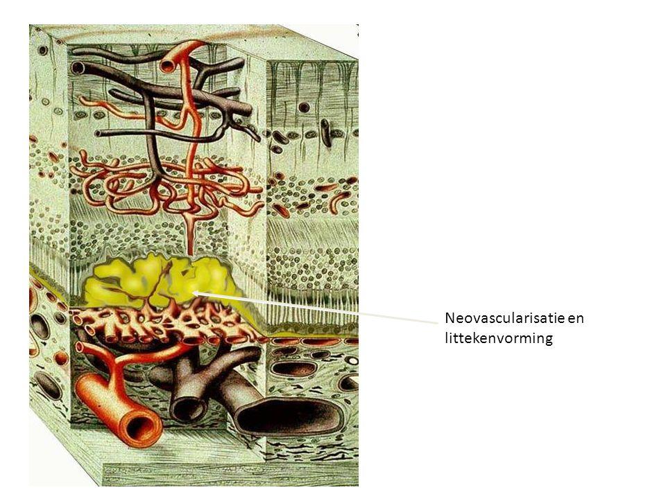 Neovascularisatie en littekenvorming