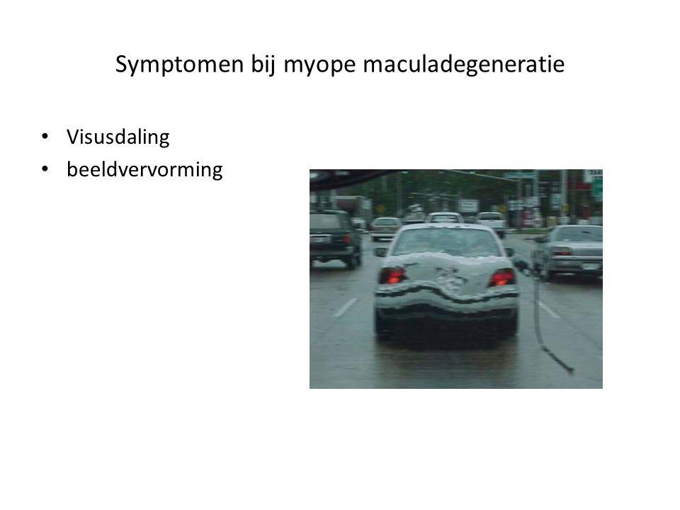 Symptomen bij myope maculadegeneratie
