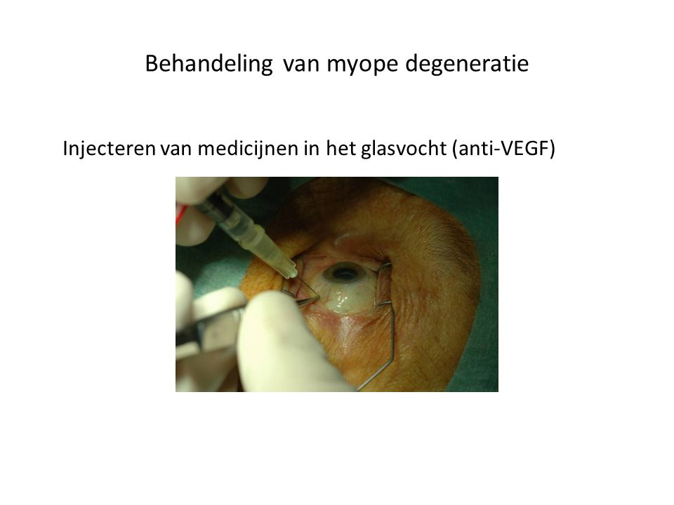 Behandeling van myope degeneratie