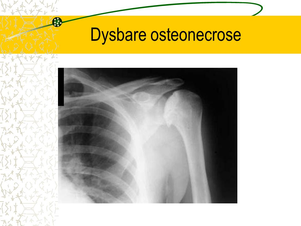 Dysbare osteonecrose