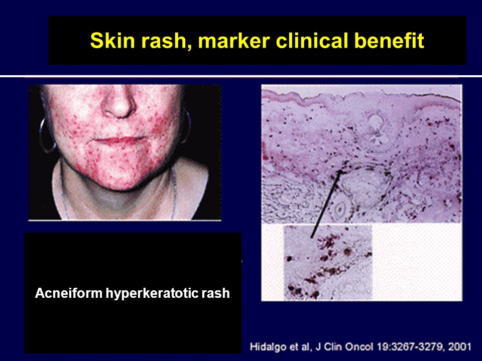 Skin rash, marker clinical benefit Acneiform hyperkeratotic rash