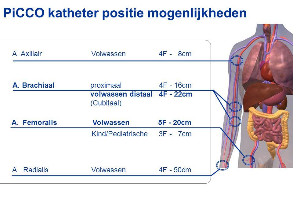 PiCCO katheter positie mogenlijkheden