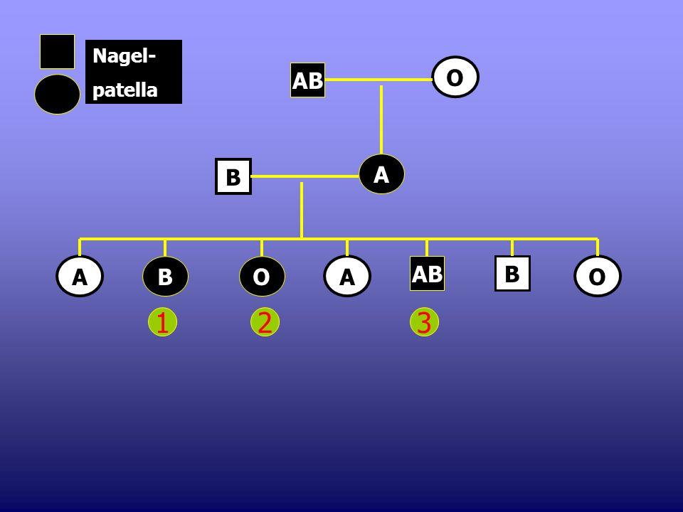 Nagel- patella O AB A B A B O A AB B O 1 2 3