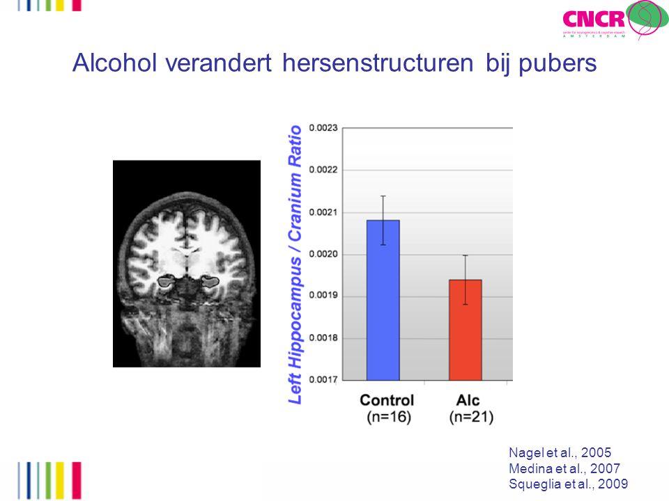 Alcohol verandert hersenstructuren bij pubers