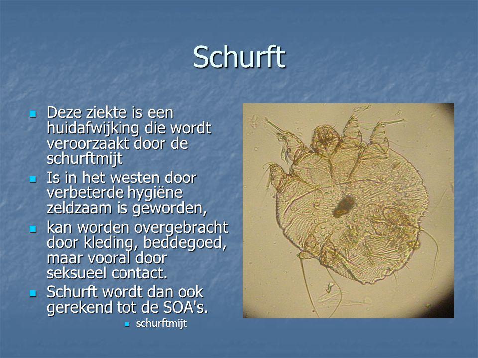 Schurft Deze ziekte is een huidafwijking die wordt veroorzaakt door de schurftmijt. Is in het westen door verbeterde hygiëne zeldzaam is geworden,