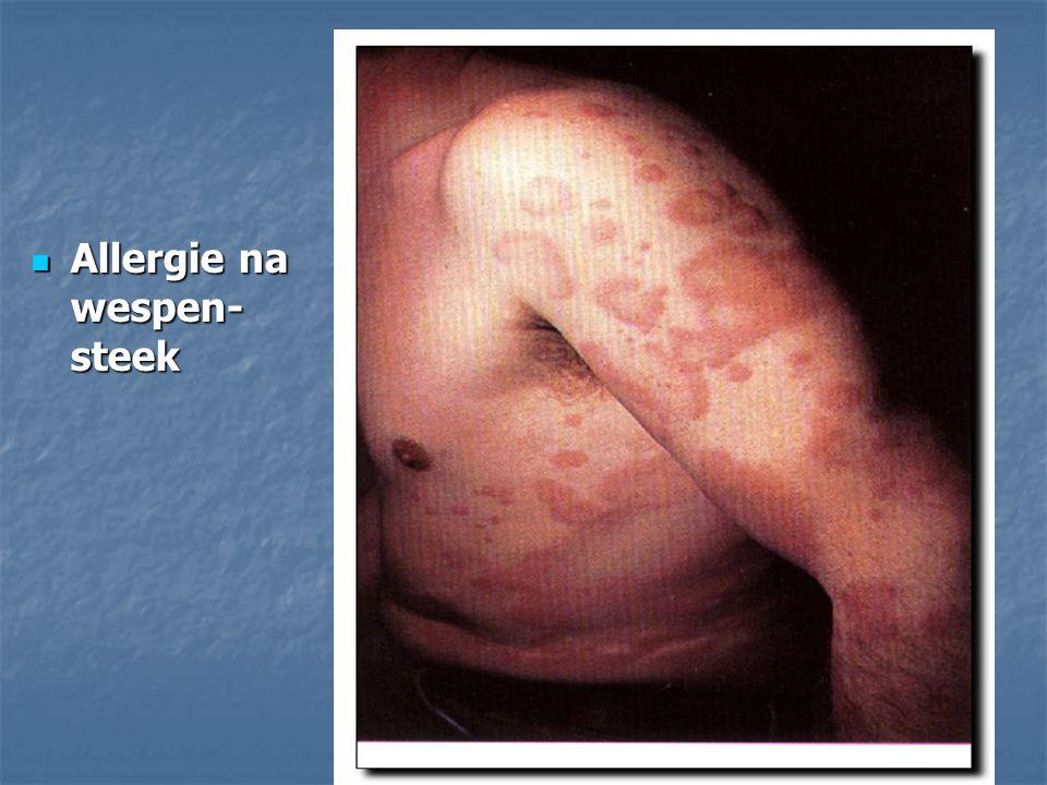 Allergie na wespen-steek