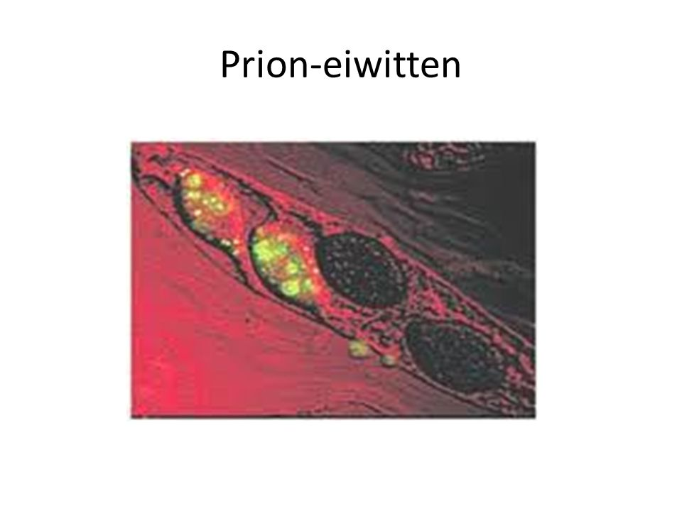 Prion-eiwitten