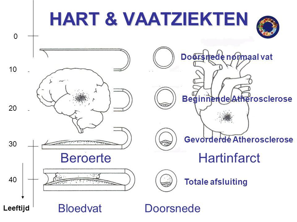 HART & VAATZIEKTEN Beroerte Hartinfarct Bloedvat Doorsnede