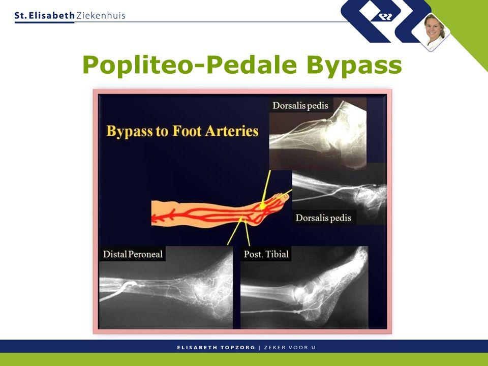 Popliteo-Pedale Bypass