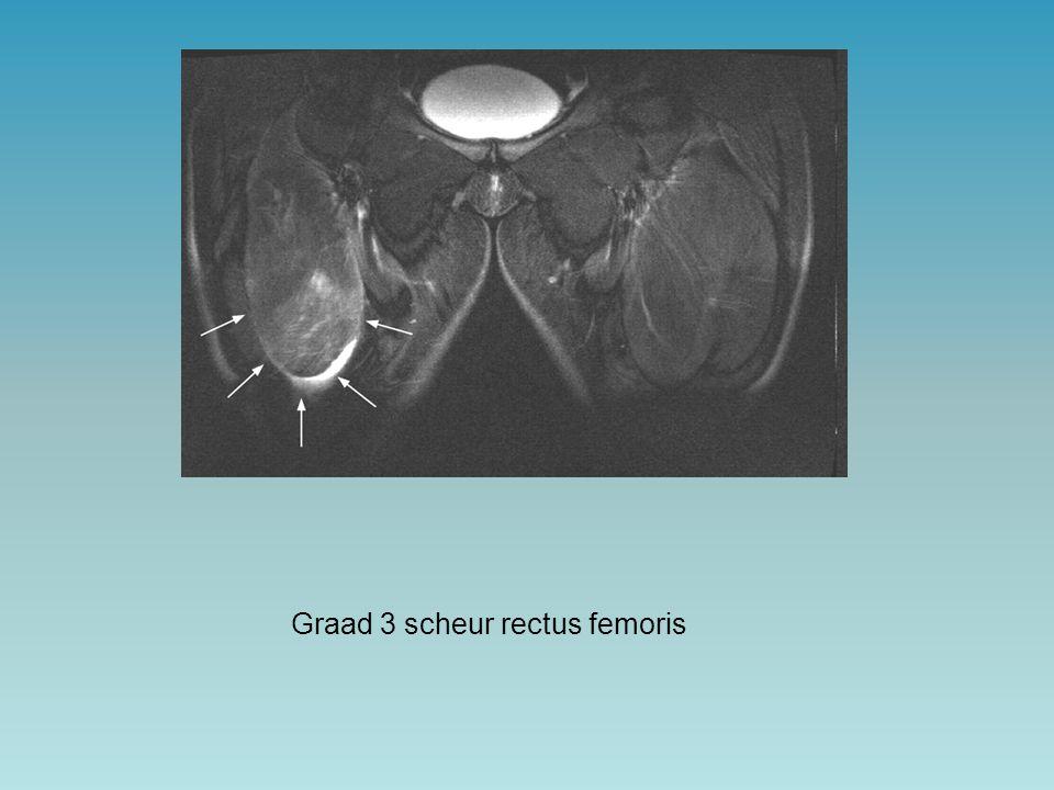 Graad 3 scheur rectus femoris
