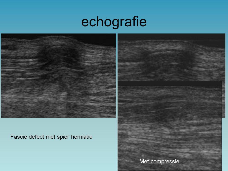 echografie Fascie defect met spier herniatie Met compressie