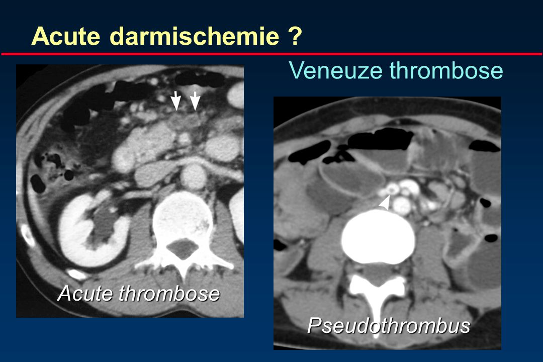 Acute darmischemie Veneuze thrombose