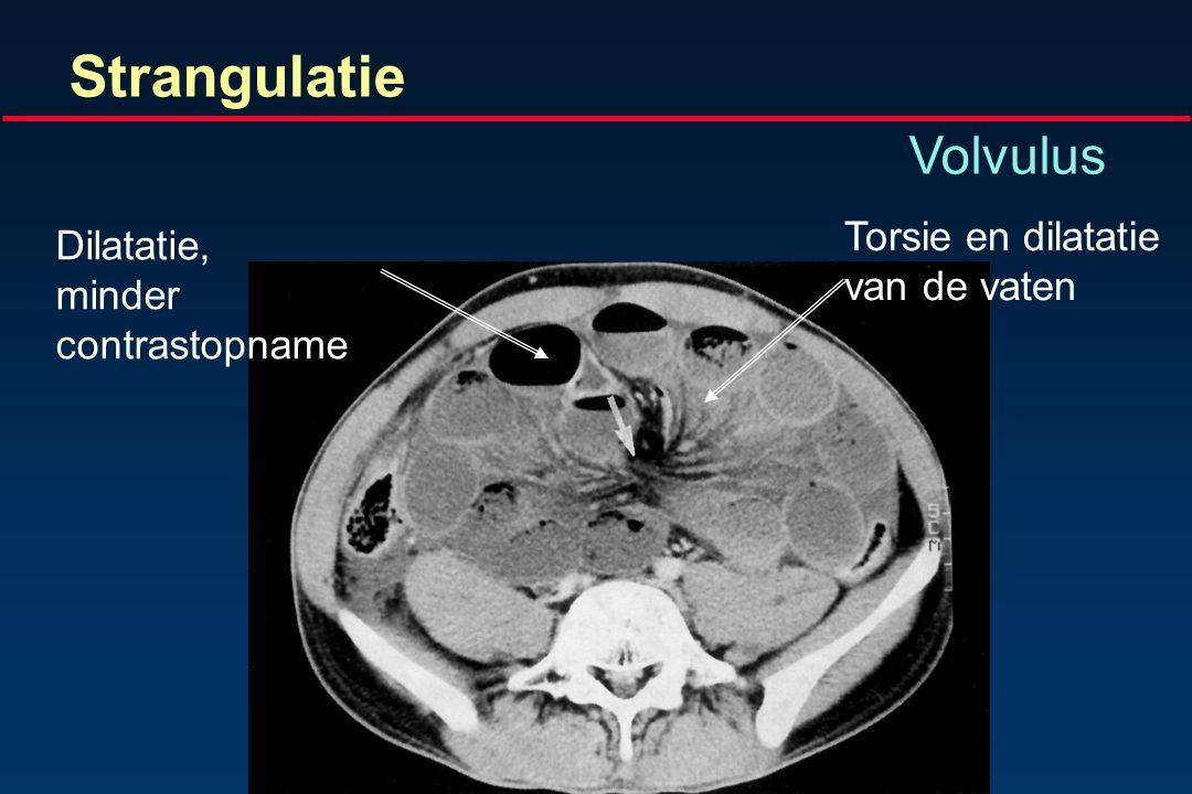Strangulatie Volvulus