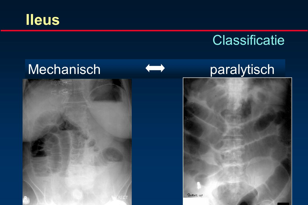 Ileus Classificatie Mechanisch paralytisch