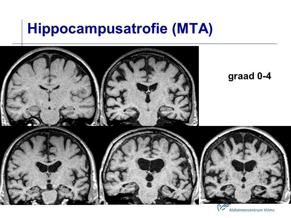 Hippocampusatrofie (MTA)