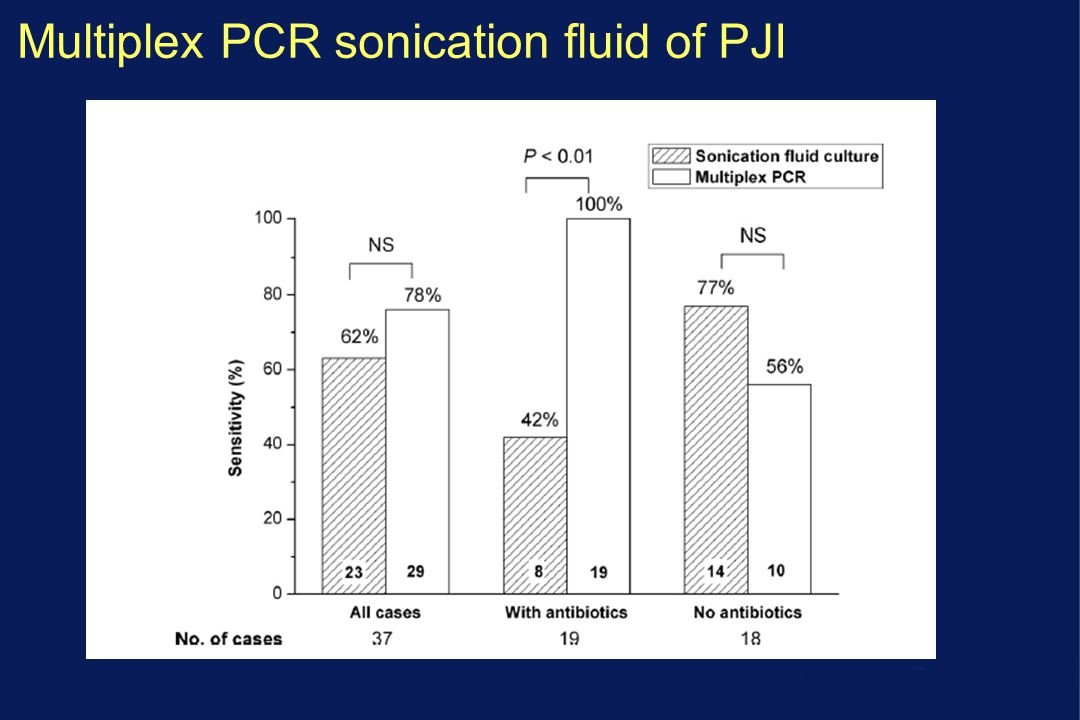 Multiplex PCR sonication fluid of PJI
