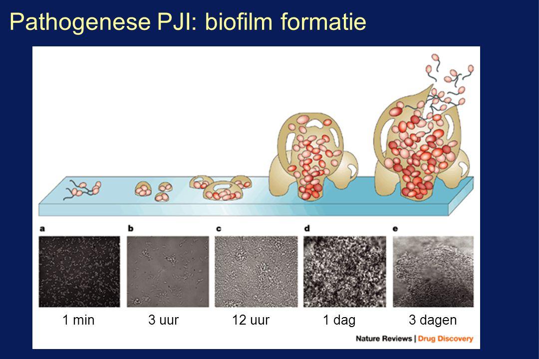 Pathogenese PJI: biofilm formatie