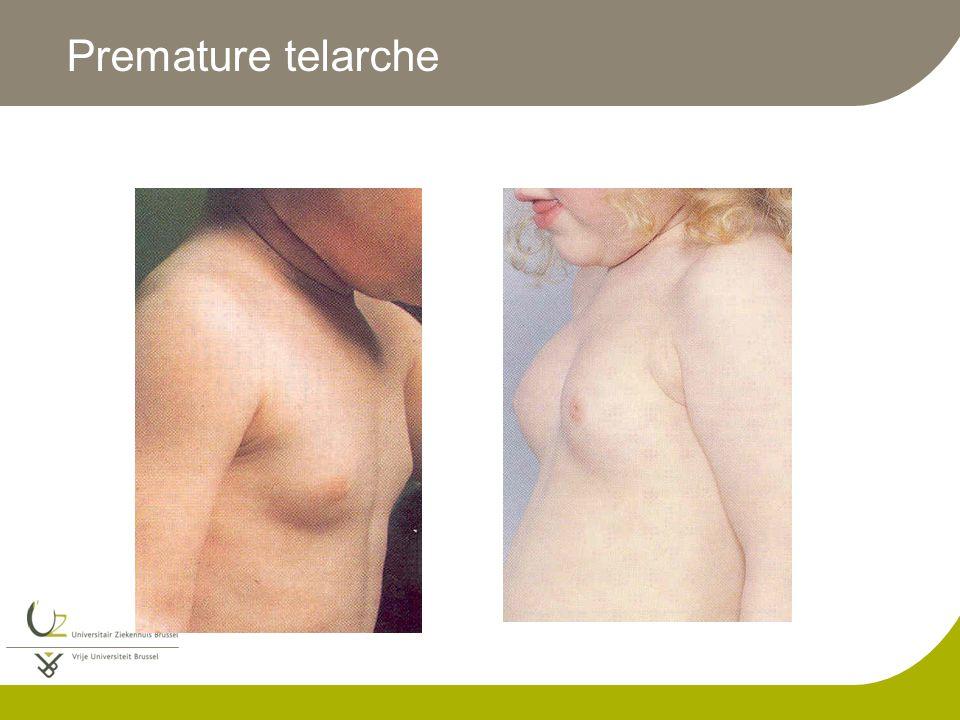 Premature telarche