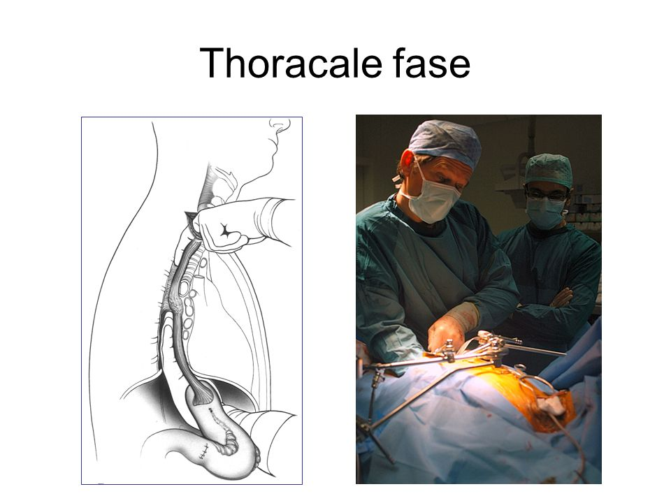 Thoracale fase