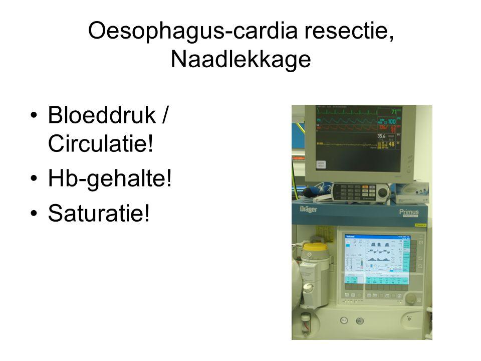 Oesophagus-cardia resectie, Naadlekkage